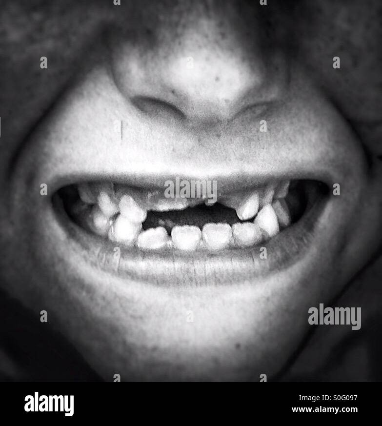 Smiling with missing top teeth Stock Photo