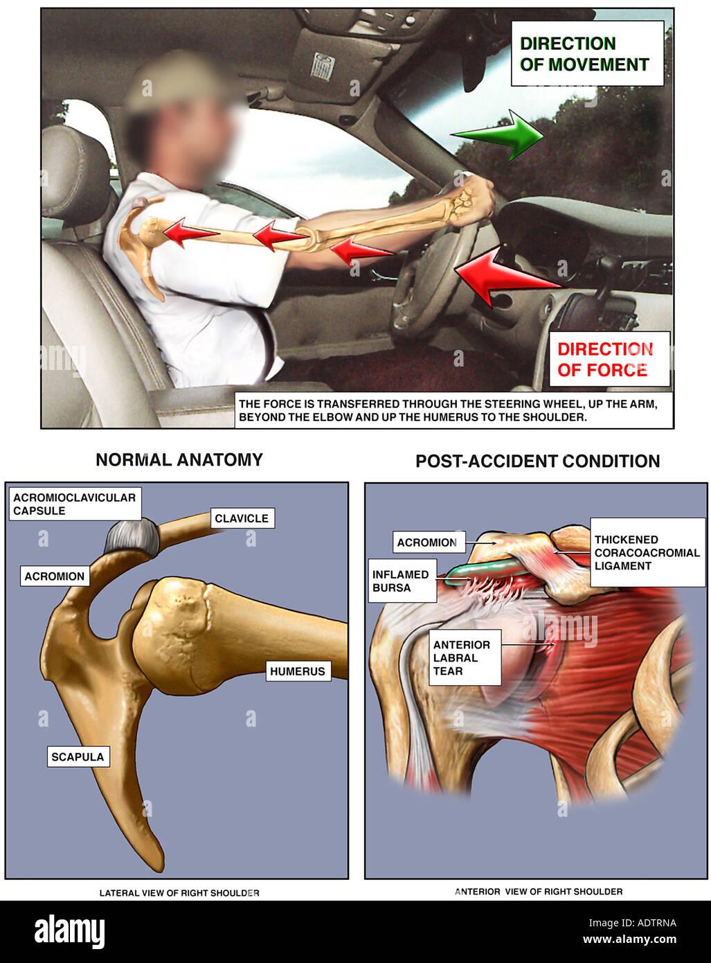 Mechanismus der Schulterverletzung In Kraftfahrzeug-Verkehrsunfall (MVA) Stockbild