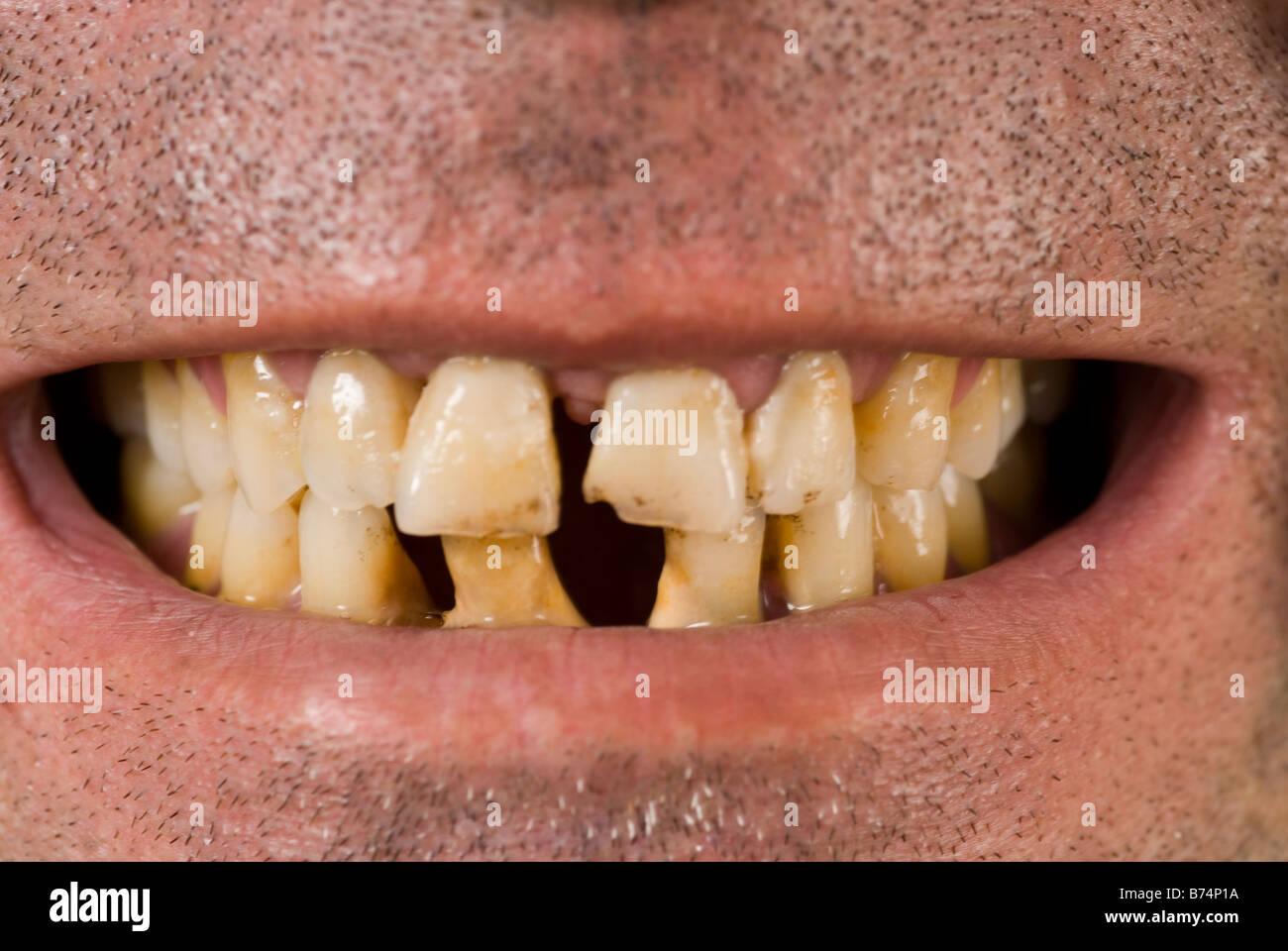 Nahaufnahme von schlechten Zähnen Stockbild
