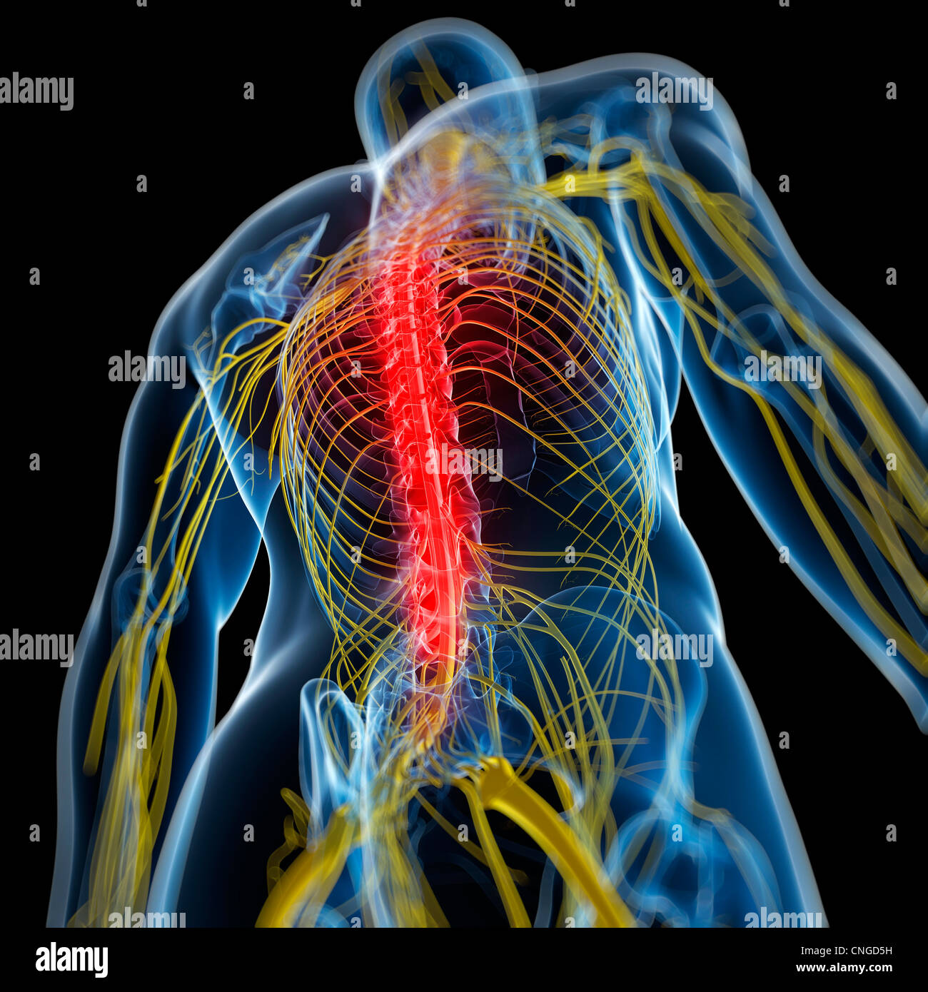 Schmerzen im Rücken konzeptuellen Kunstwerk Stockfoto