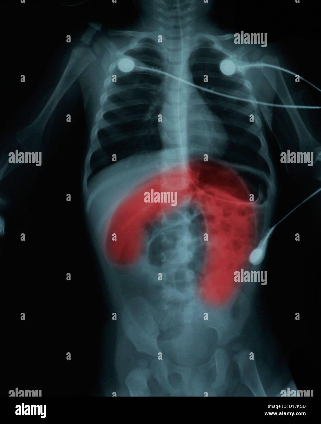 Körper x-ray 11 Monat Kindes mit Darmverschluss Stockbild