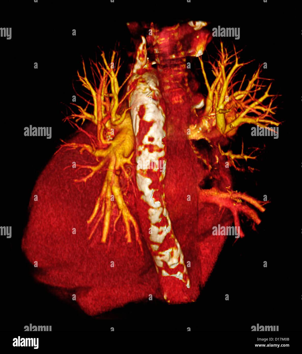 CT-Untersuchung des Herzens mit Schulterarthrose aorta Stockbild