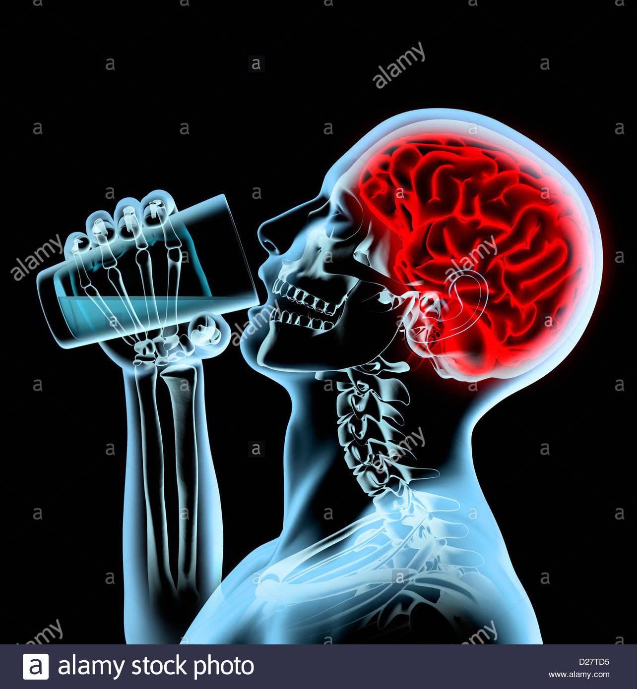 X-ray Mann mit roten Gehirn trinken aus Glas Stockbild