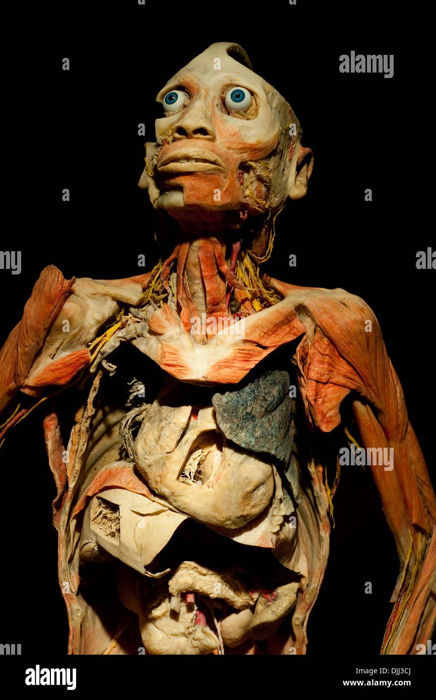 Erhaltenen menschlichen Körper zergliedert, die inneren Organe ...