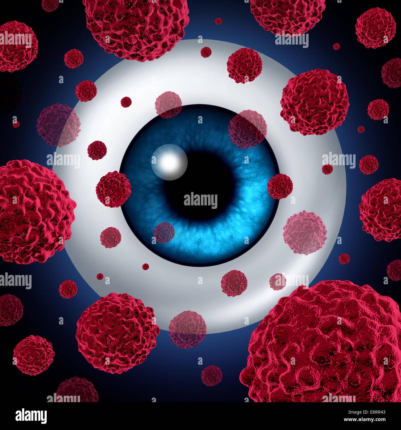 Auge-Krebs-Konzept oder intraokularen Tumoren Symbol als eine menschliche Augapfel mit Krebszellen Verbreitung als Stockbild