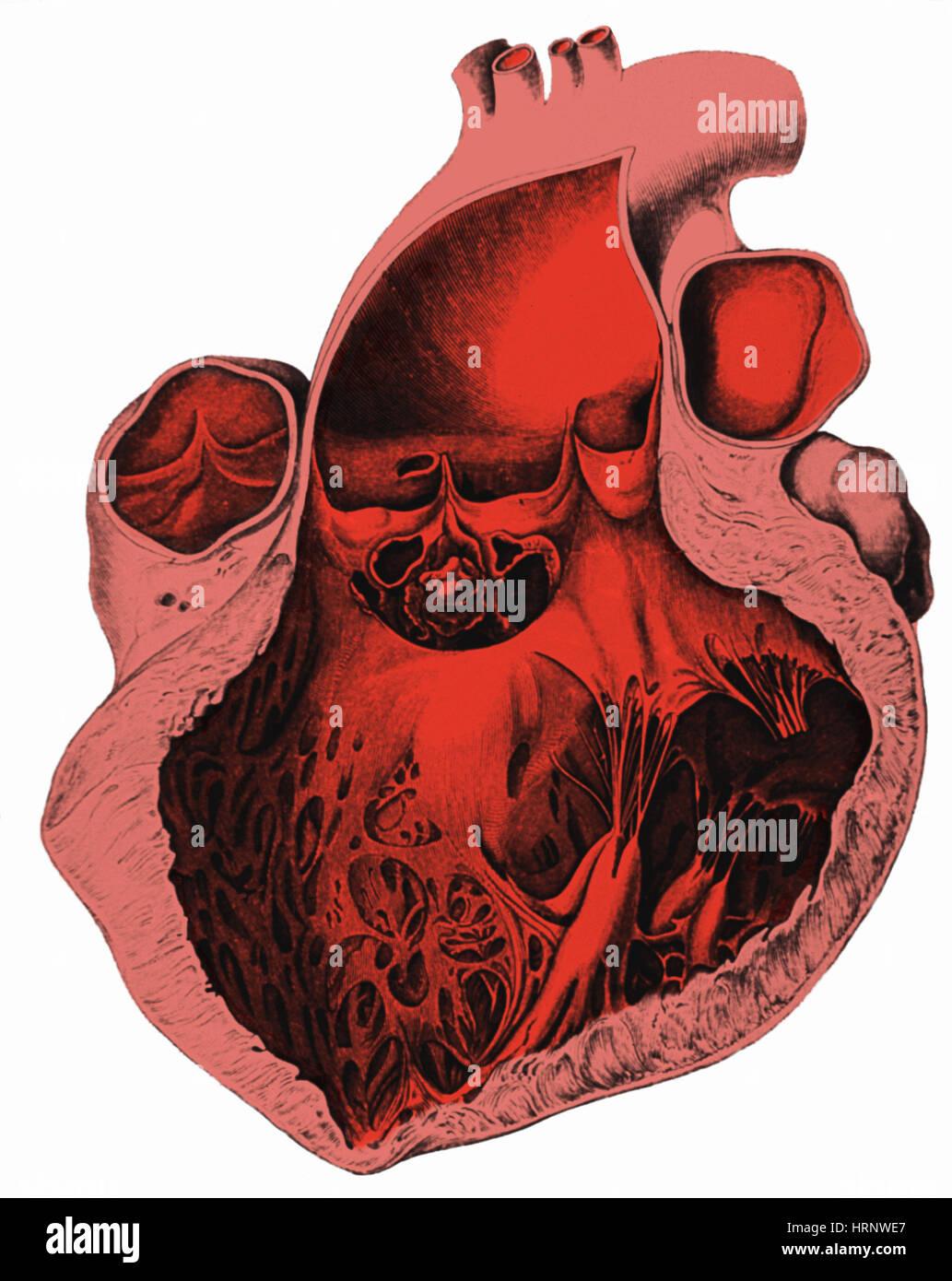 Herz-Anatomie, Carl von Rokitansky, 1875 Stockbild