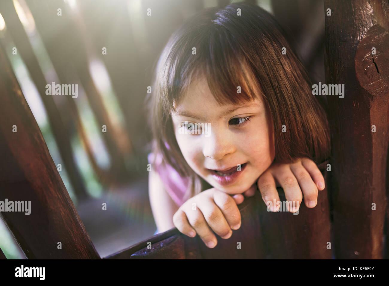 Portrait von schönen Mädchen mit Down-syndrom Stockbild