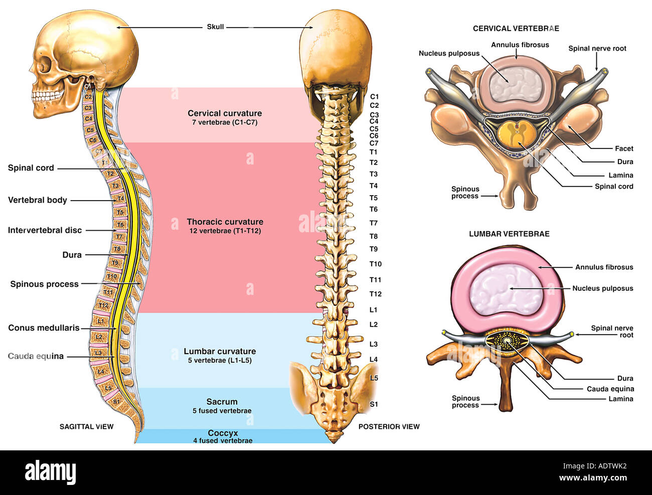 Anatomía de la columna vertebral con el típico cáncer cervical y ...