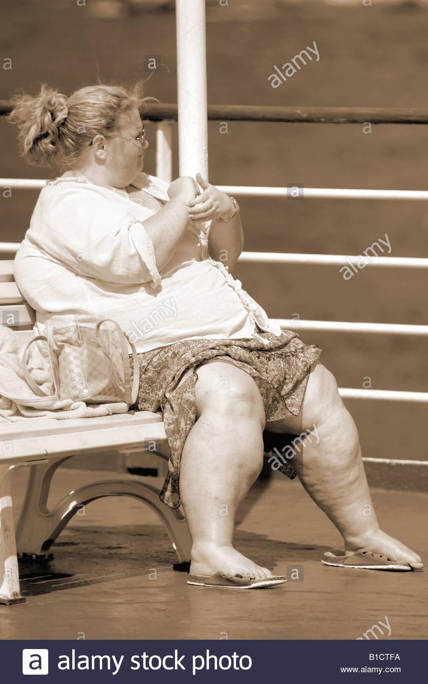 Grasa en adultos obesos persona apariencia anatómica de ...
