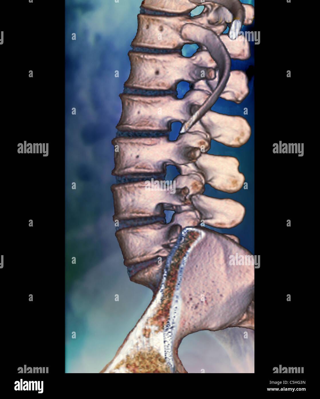 Normal, una tomografía computarizada de la columna vertebral Foto ...