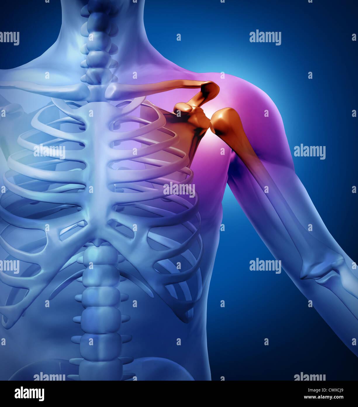 Derechos dolor de hombro con una anatomía lesiones provocadas por ...