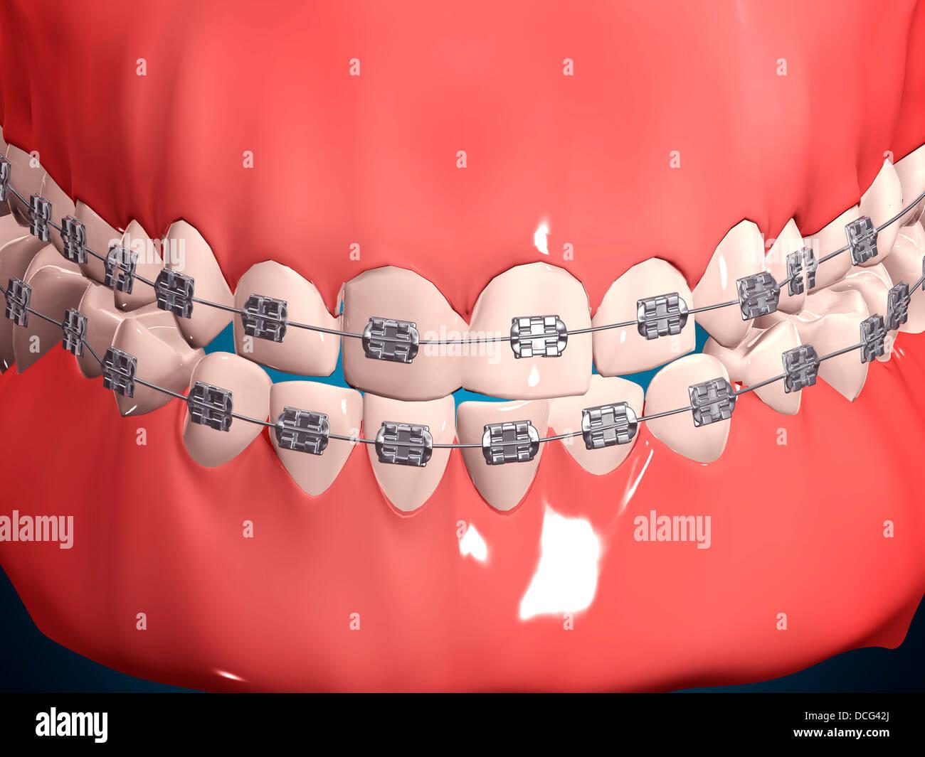 Ilustración médica de la boca humana mostrando los dientes, las ...