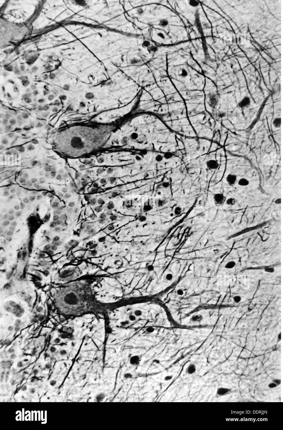 Medicina, anatomía, cerebric / cráneo, cortezas del cerebelo humano ...