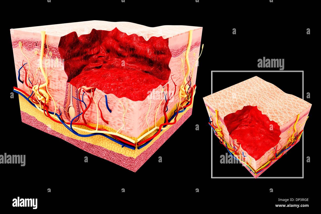 Anatomía de la piel humana, obras de arte Foto & Imagen De Stock ...