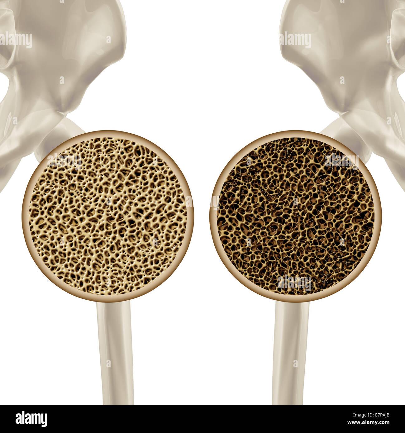 Osteoporosis ilustración médica salud concepto mostrando la ...