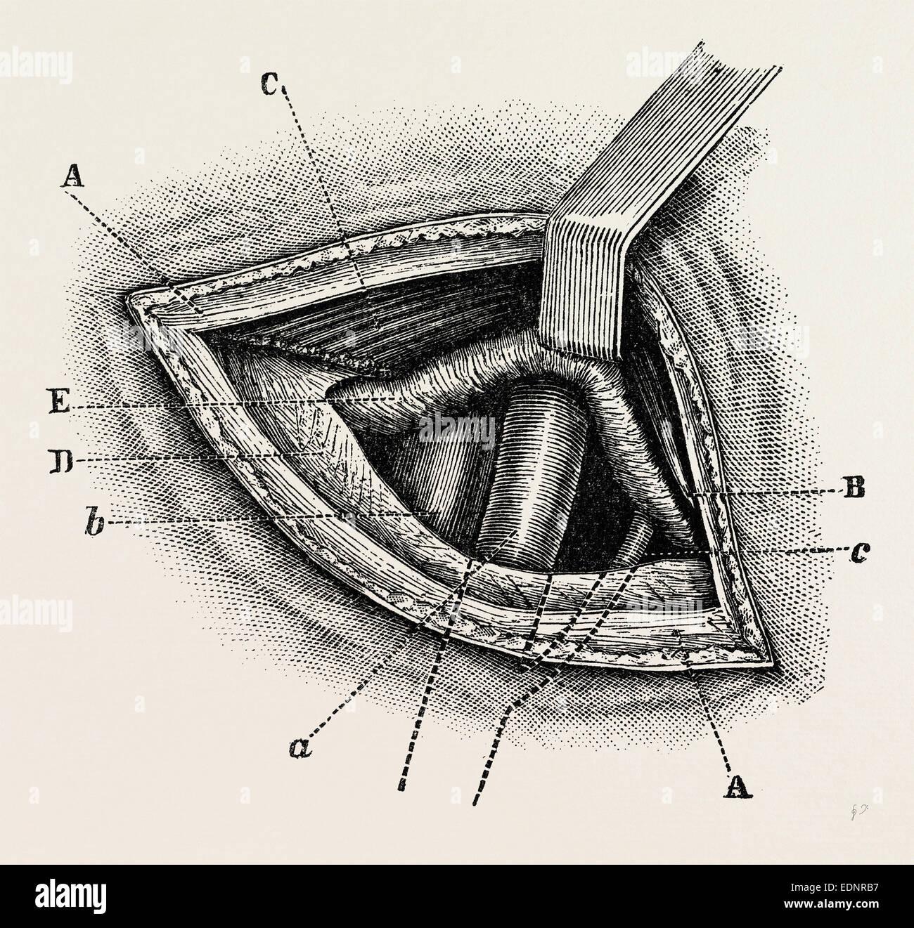external iliac artery Stock Photos & external iliac artery Stock ...
