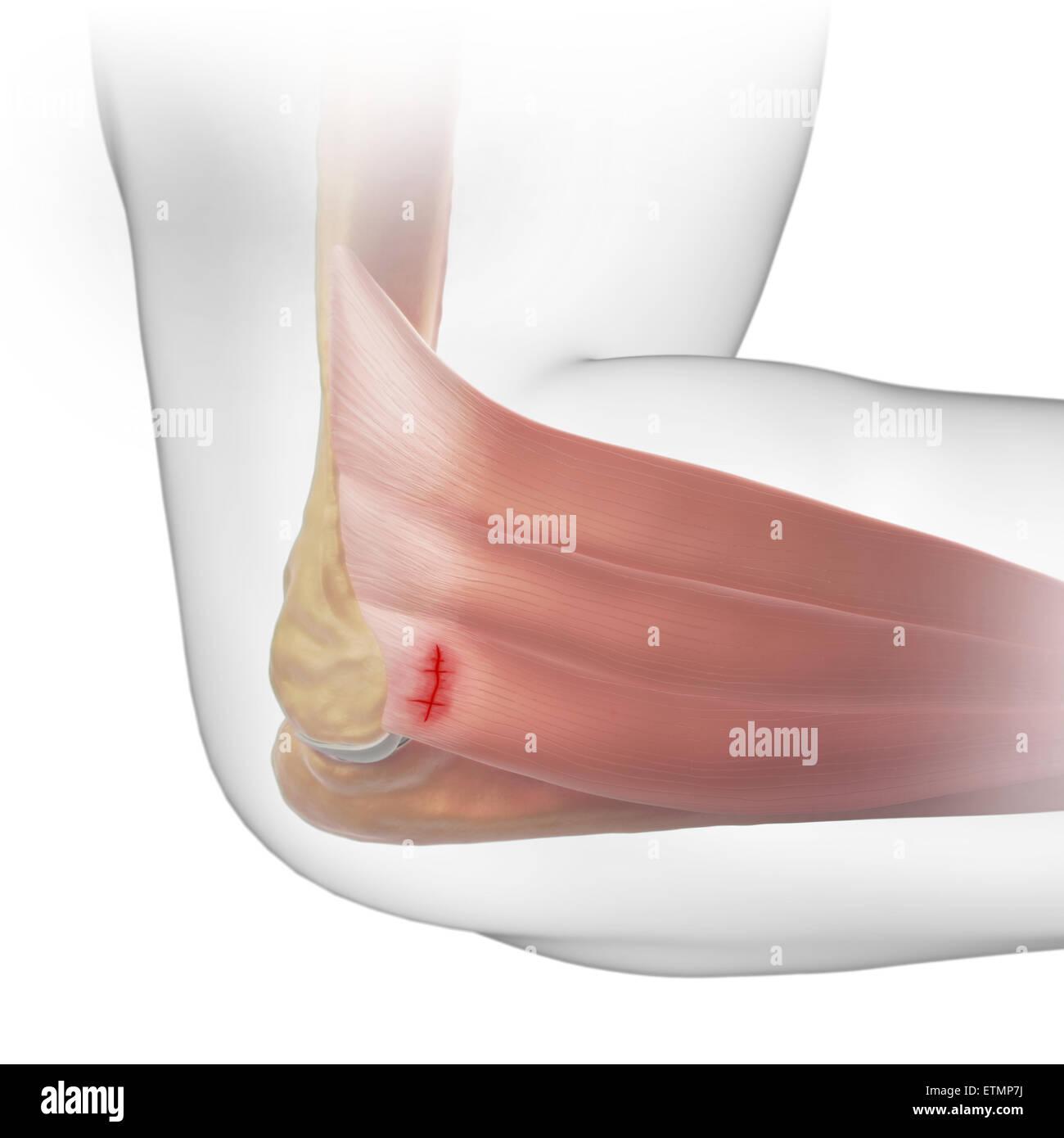 Ilustración del brazo con piel transparente para mostrar lesiones de ...