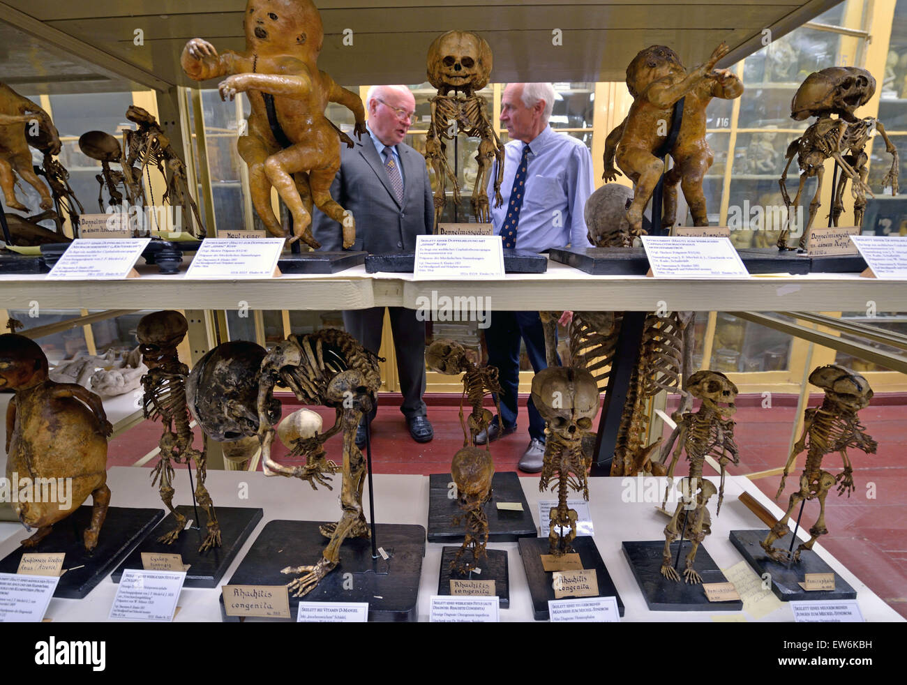 Profesor de anatomía Ruediger Schultka (L) y Bernd Fischer, Director ...
