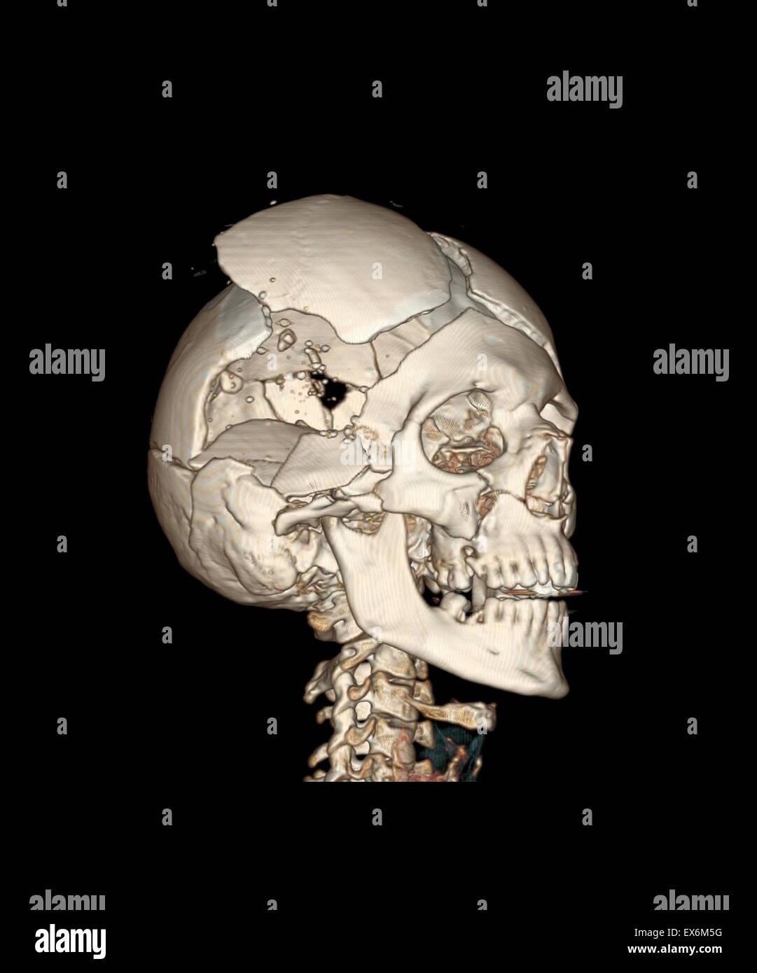 Vista anterior derecha de un CT reconstrucción tridimensional del ...