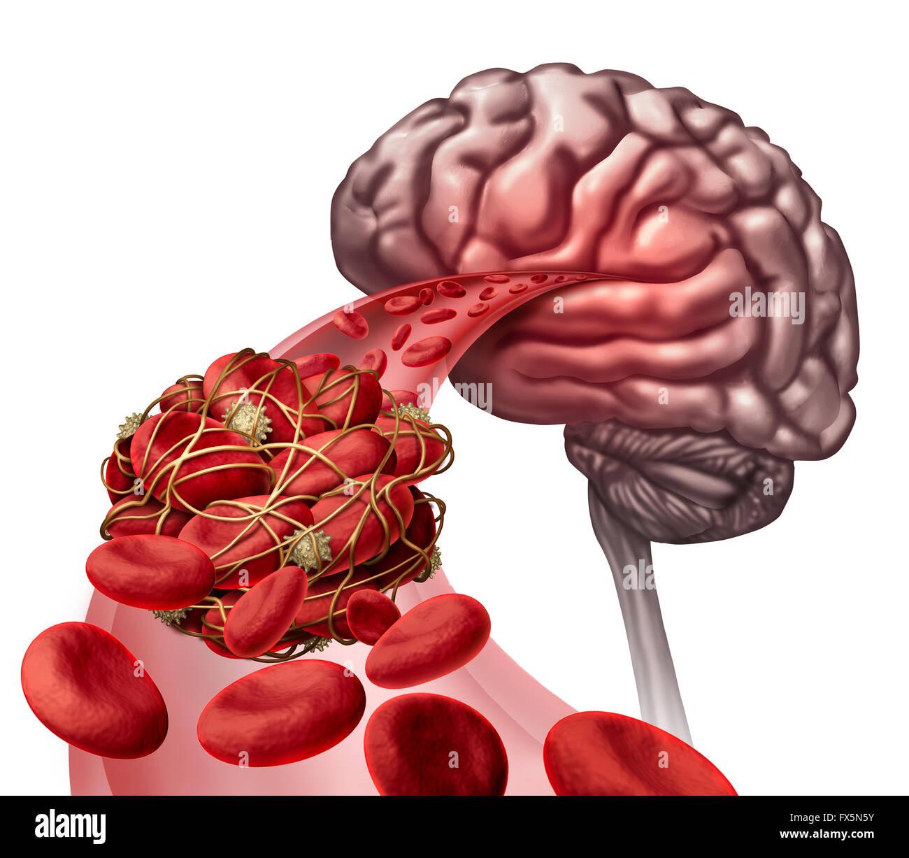 Concepto médico coágulo de sangre del cerebro como ilustración 3D ...