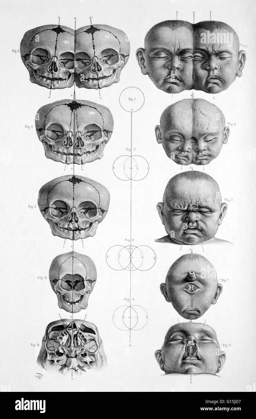 La cabeza y Cráneo del recién nacidos malformados; siameses, labio ...