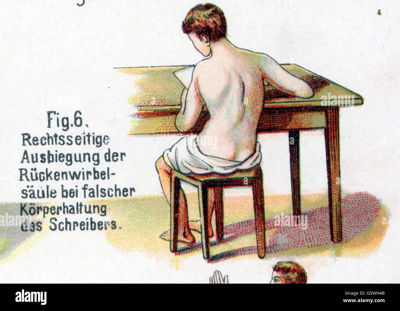 La medicina, anatomía, esqueleto / Huesos, inclinación de la espalda ...