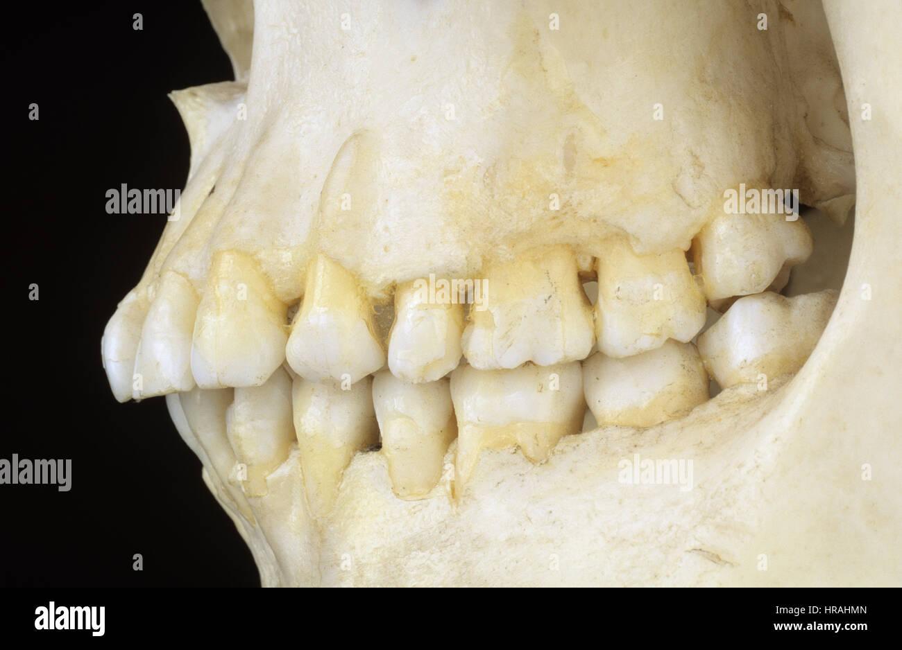 Vista lateral de los dientes de un esqueleto humano Foto & Imagen De ...
