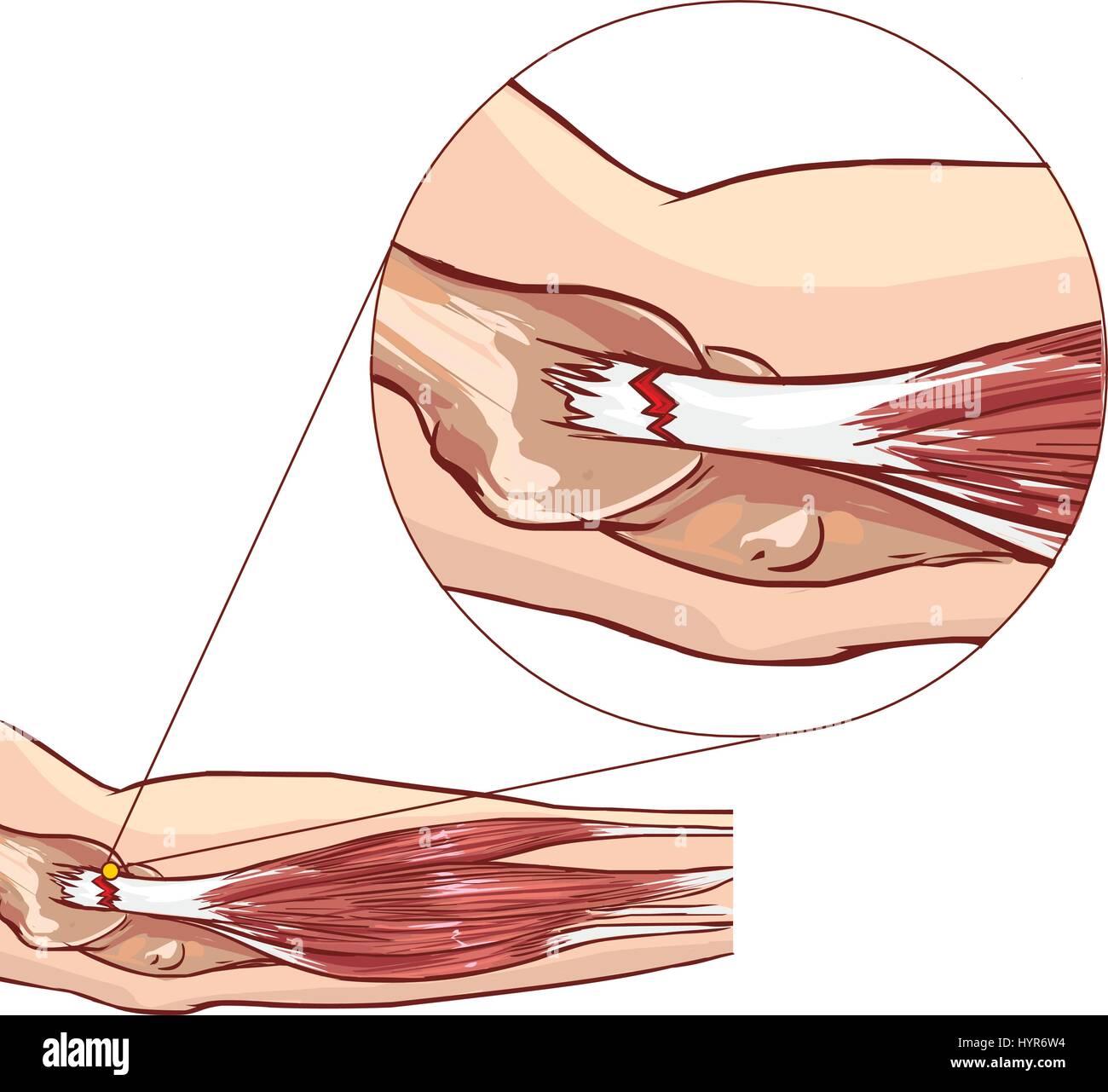 Codo de tenista - desgarro del tendón extensor común del brazo ...