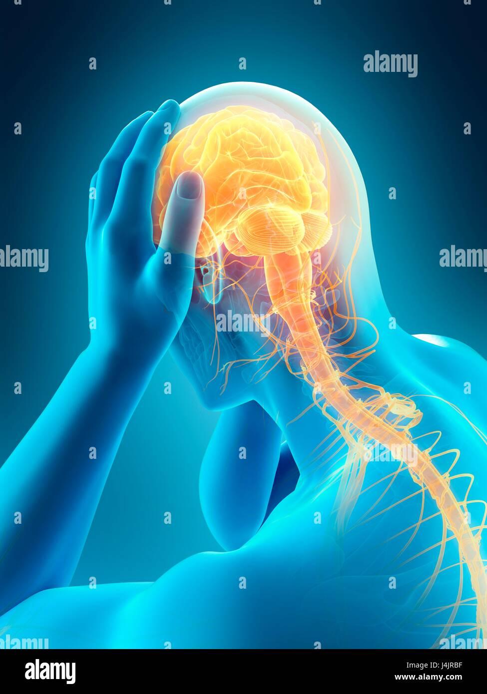 Anatomía de la persona con dolor de cabeza, la ilustración Foto ...