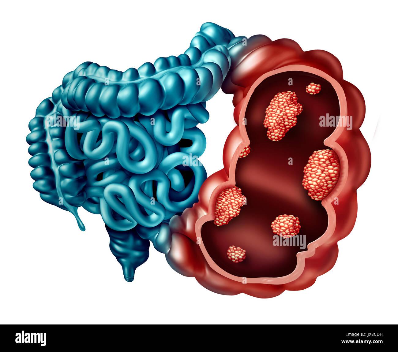 Concepto de cáncer de colon como una enfermedad del intestino humano ...