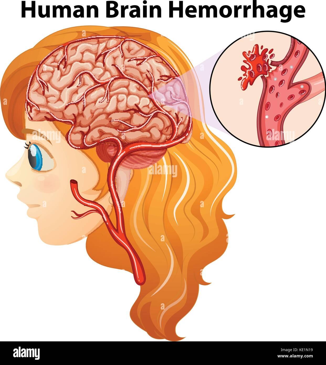 Diagrama que muestra hemorragia cerebral humano ilustración ...