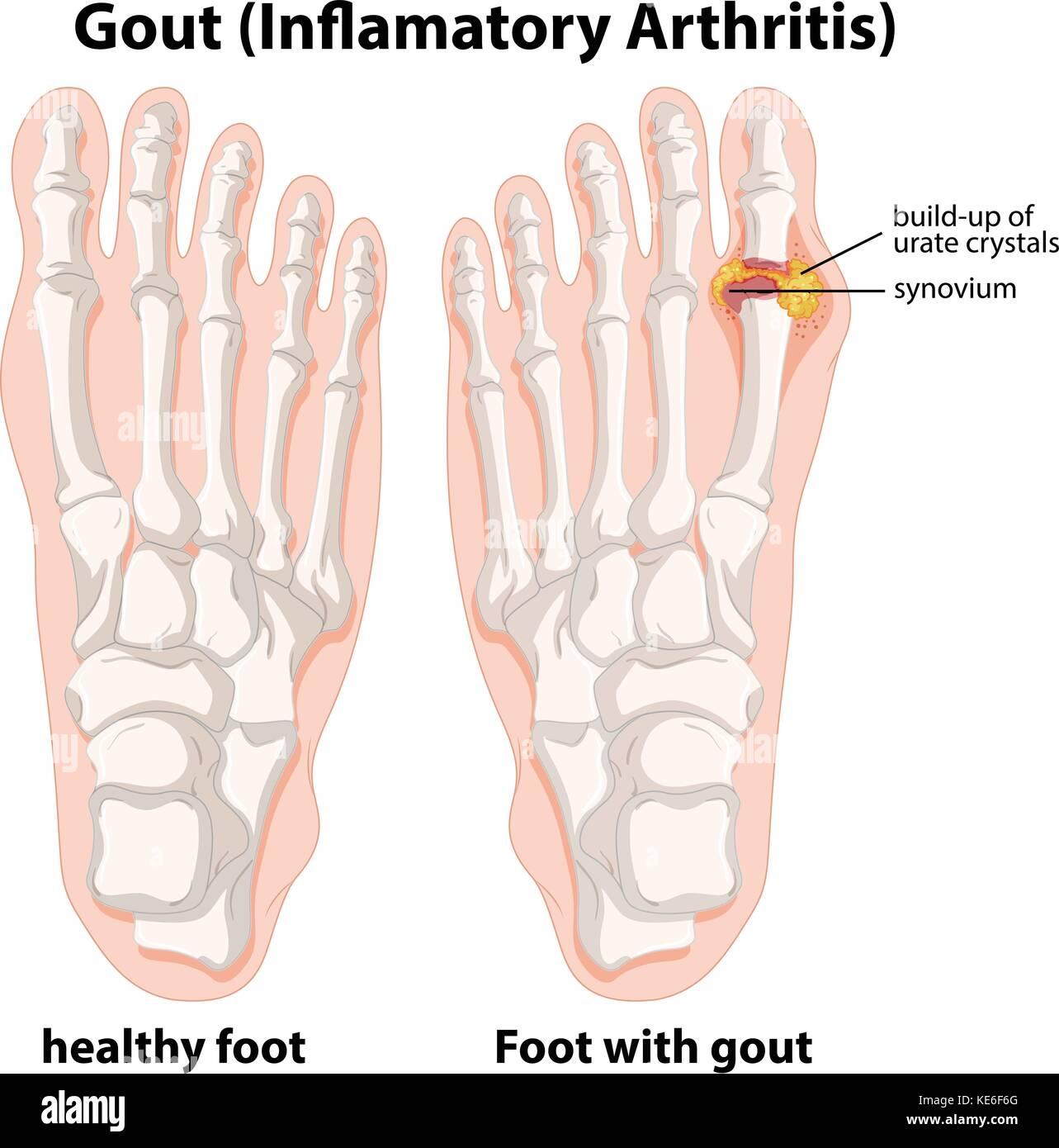 Explicación diagrama de gota en el pie humano ilustración ...