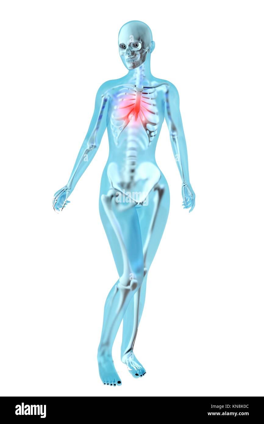 Anatomía femenina. Dolor en el pecho. Ilustración 3D Foto & Imagen ...