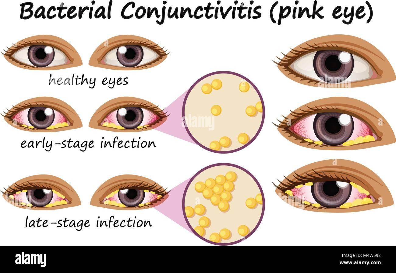 Diagrama que muestra la conjuntivitis bacteriana en el ojo humano la ...