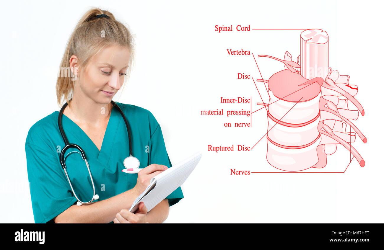 La medicina y la anatomía. Médico y anatómica de la columna ...