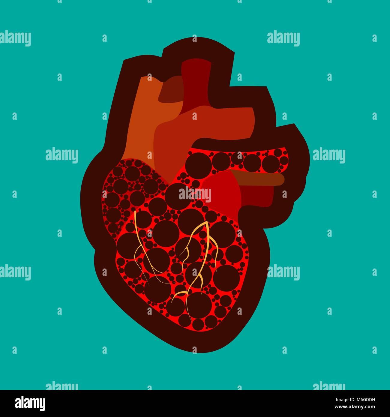 El conocimiento de la enfermedad cardíaca congénita póster con el ...