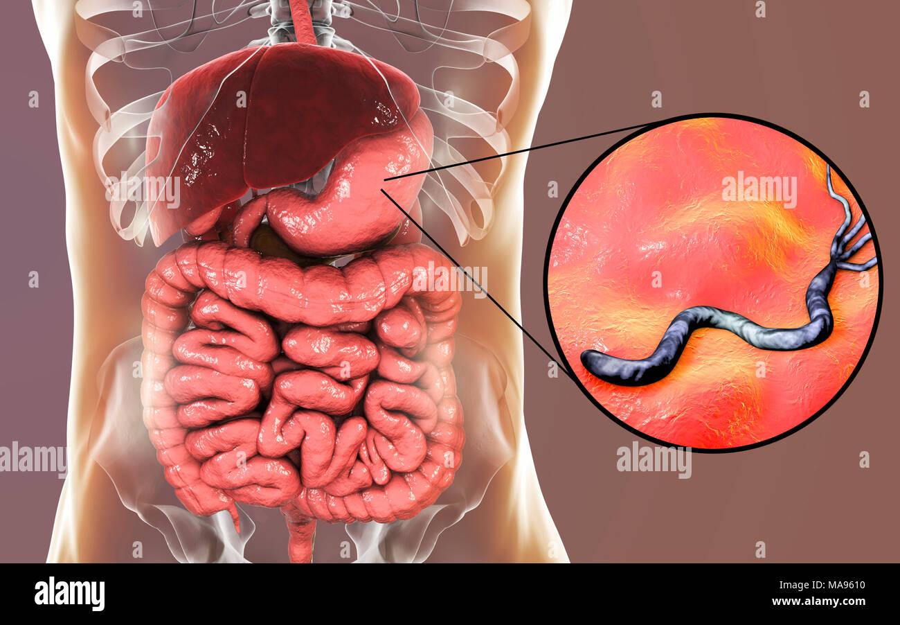 La bacteria Helicobacter pylori. Equipo ilustración de bacterias ...