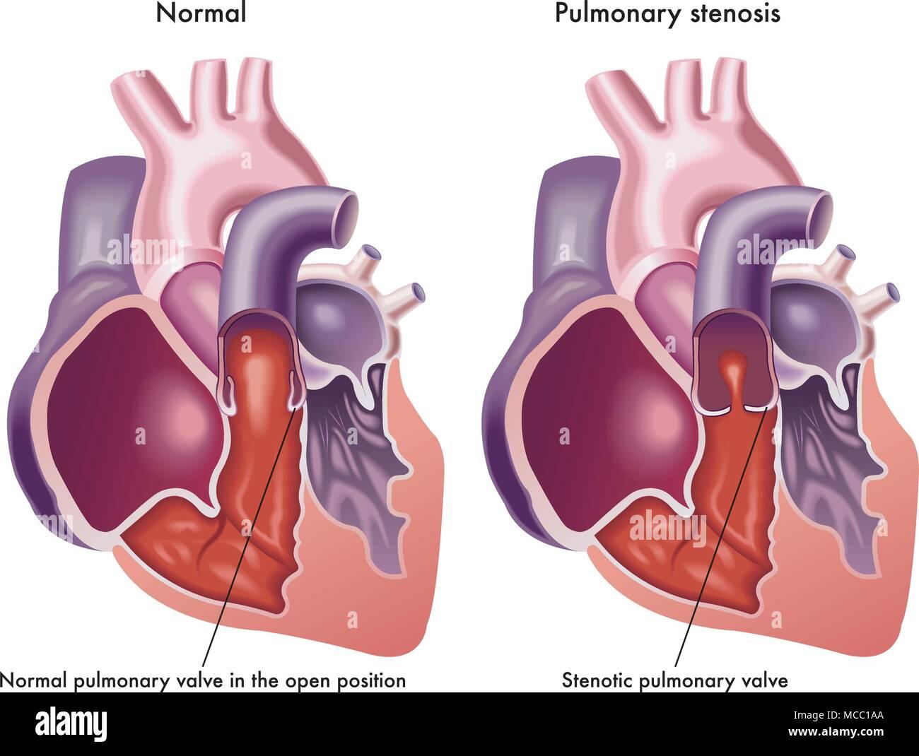 Una ilustración de un corazón humano con válvula pulmonar normal y ...