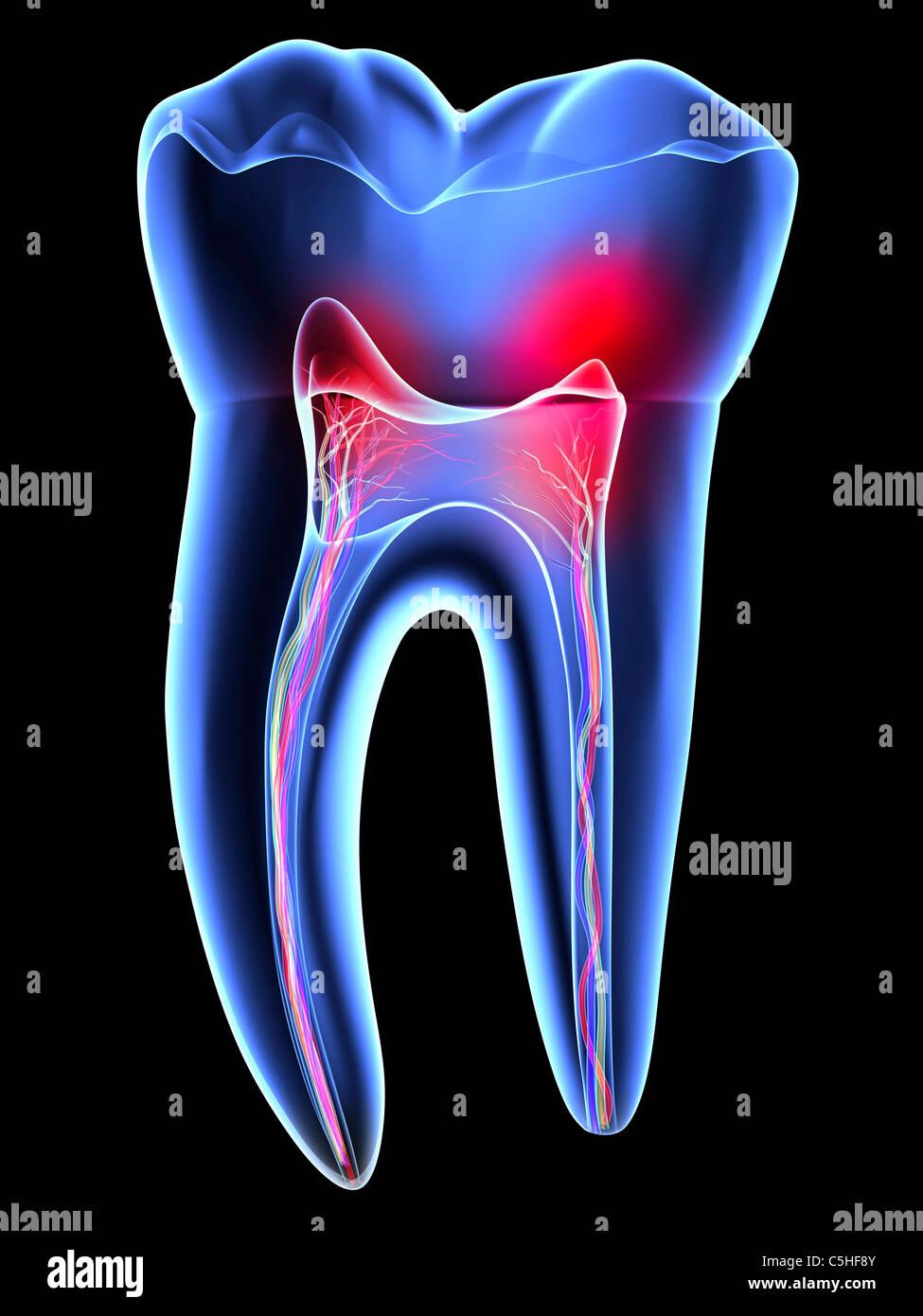 Dente dolore, mal di denti Immagini Stock