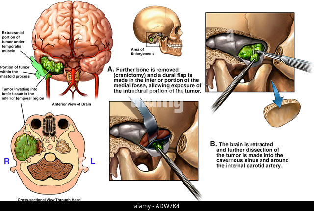 How Does a Brain Tumor Affect the Body  Sharecare