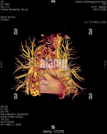 Pulmonary artery anatomy ct