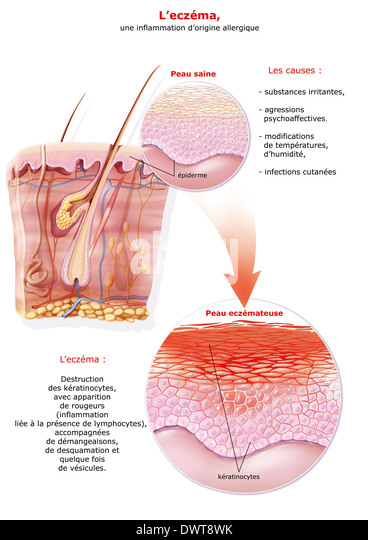 Keratinozyten