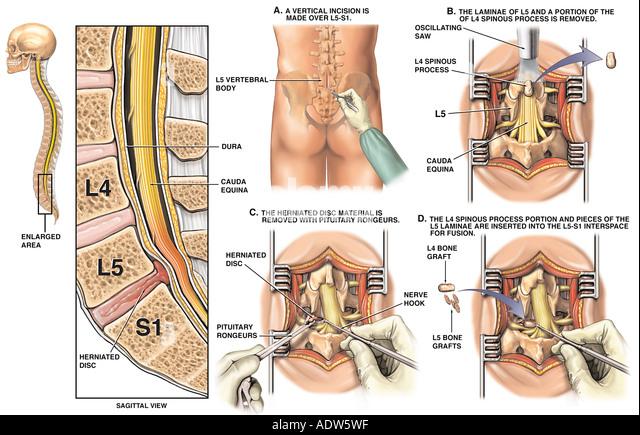 retrolisthesis laminectomy
