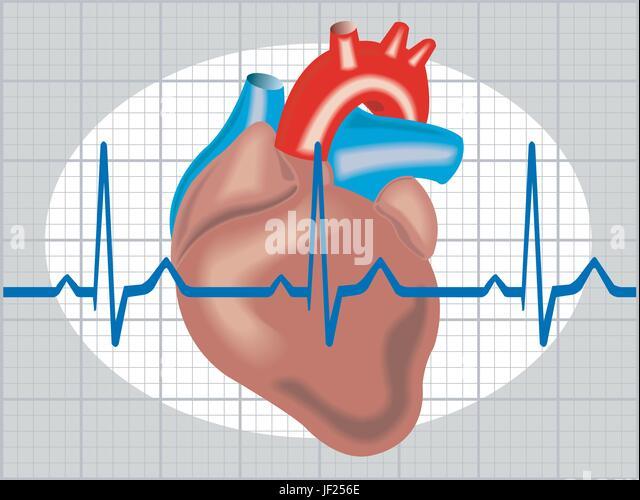 Аритмия сердца и повышенное давление