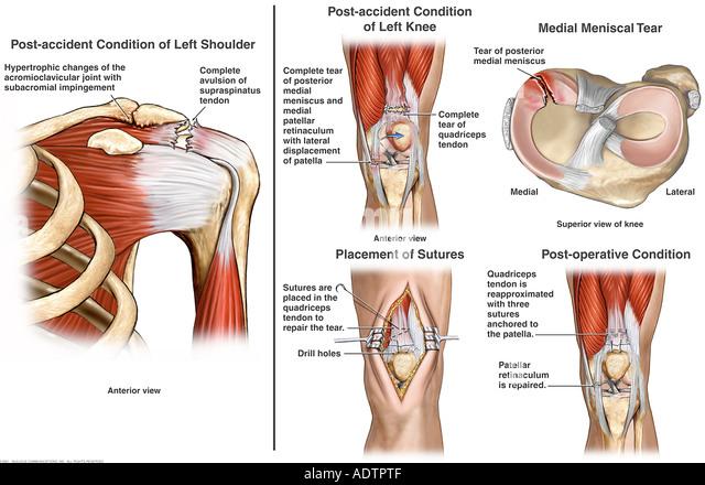 Left shoulder anatomy