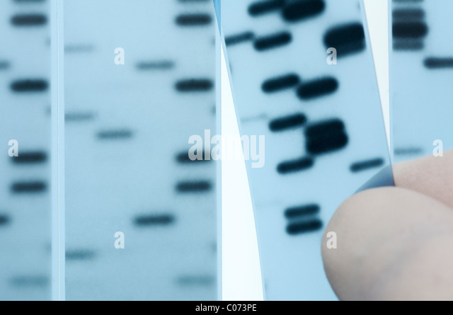 dna-sequencing-scientist-points-to-bands