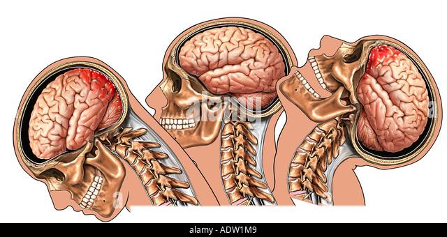 lidocaine and brain injury